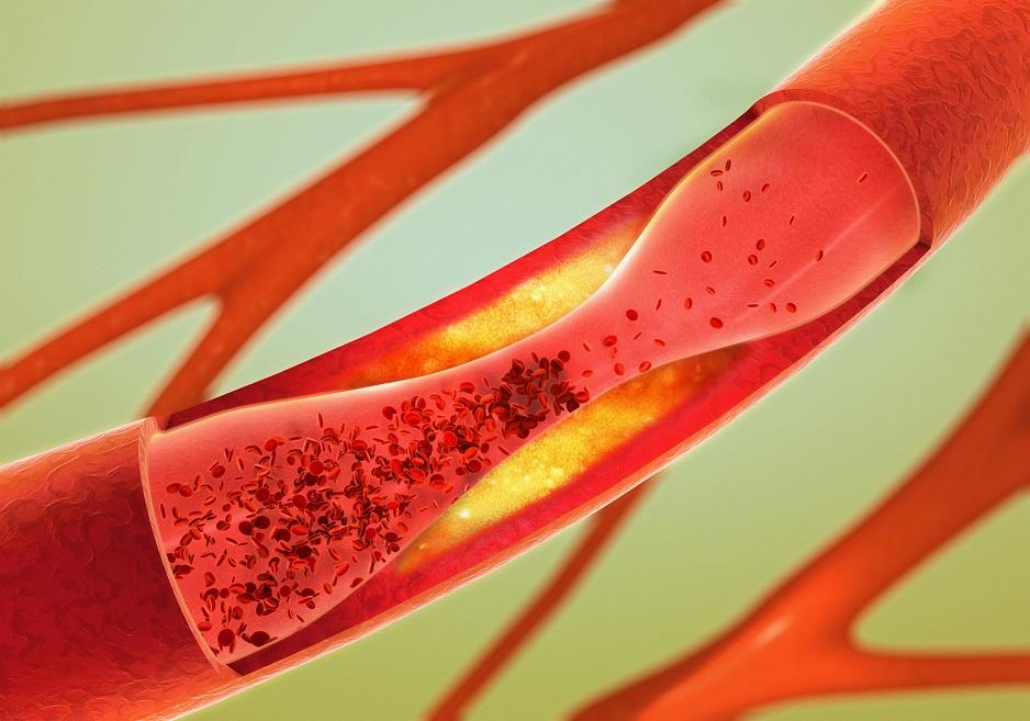 nieleczona miażdżyca może się skończyć zawałem, udarem lub amputacją kończyn.