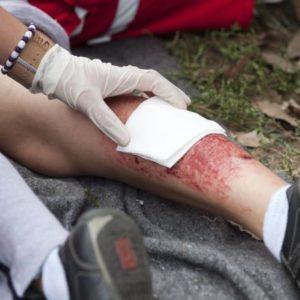 pierwsza-pomoc-przy-oparzeniach